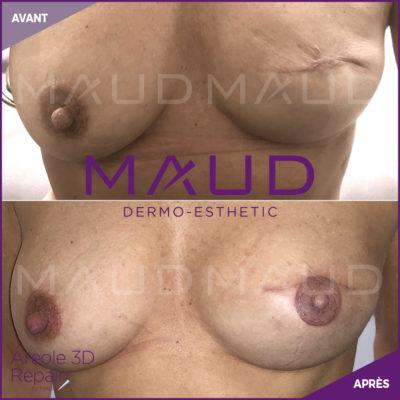 life-repair-aerole-3d-repair-maud-dermo-esthetic-2