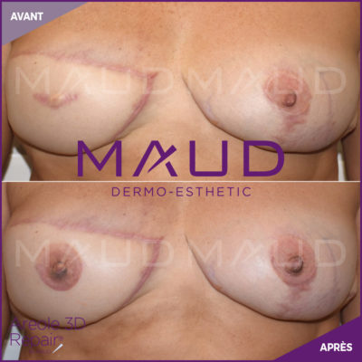 life-repair-cancer-areole-3d-repair-maud-dermo-esthtetic