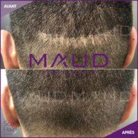 life-repair-cicatrice-scar-hair-maud-dermo-esthetic-3