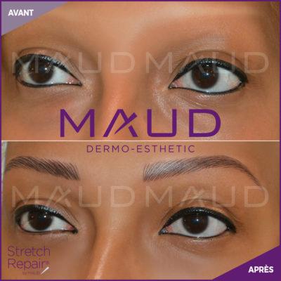 life-repair-eyebrow-repair-maud-dermo-esthetic