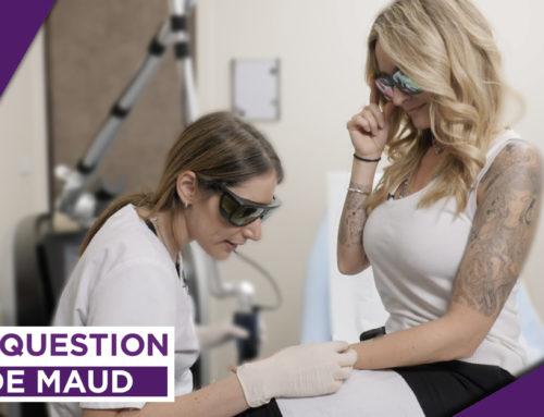 LA QUESTION DE MAUD AU DR DOUKHAN (S1E1) : Comment faire disparaître un Tatouage au Laser ?