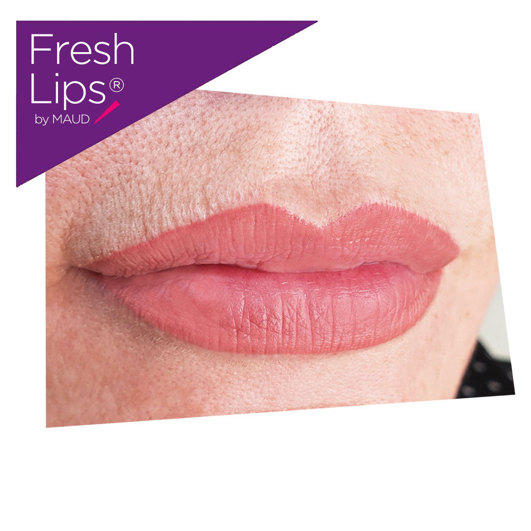 Comment avoir des lèvres pulpeuses ? Maud Dermo Esthetic